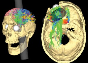 A rendering of the Gage skull with the best fit rod trajectory a