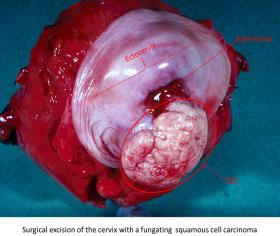 Cervice uterina asportata a suguito di un severo caso di cancro